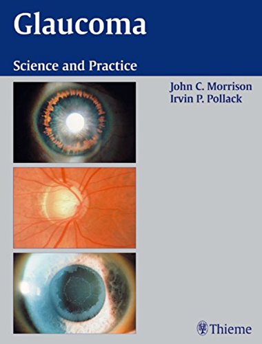 9780865779150: Glaucoma: Science and Practice