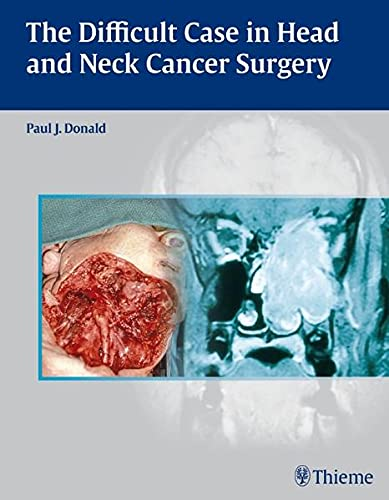 9780865779846: The Difficult Case in Head and Neck Cancer Surgery