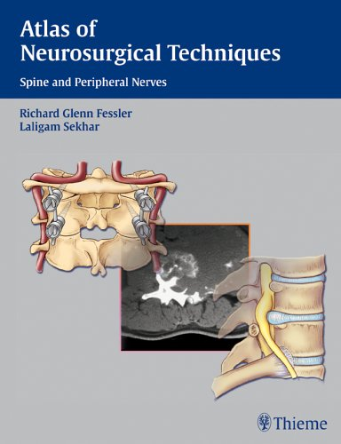 9780865779877: Atlas of Neurosurgical Techniques: Spine and Peripheral Nerves