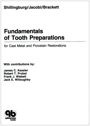 9780867151572: Fundamentals of Tooth Preparations for Cast Metal and Porcelain Restorations