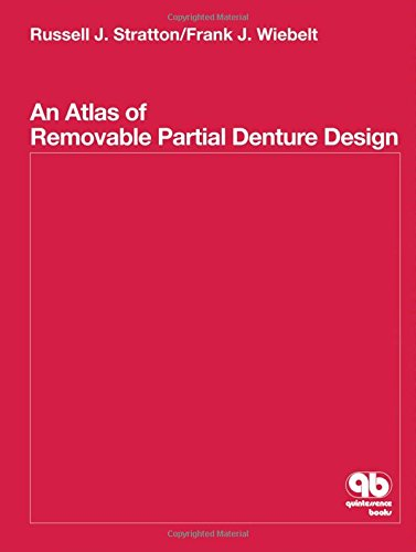 An Atlas of Removable Partial Denture Design: Stratton, Russell J./