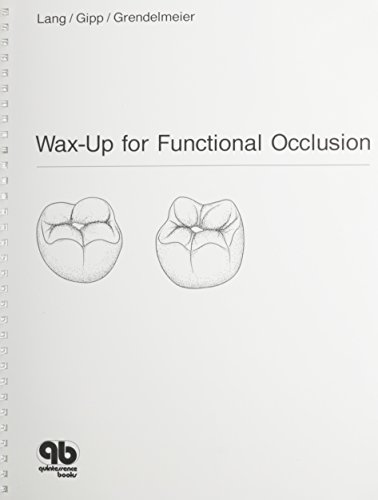9780867152173: Wax-Up for Functional Occlusion