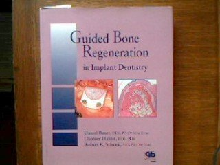 9780867152494: Guided Bone Regeneration in Implant Dentistry