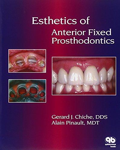 9780867152586: Esthetics of Anterior Fixed Prosthodontics