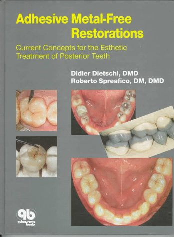 9780867153286: Adhesive Metal-Free Restorations: Current Concepts for the Esthetic Treatment of Posterior Teeth