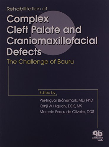 9780867153477: Rehabilitation of Complex Cleft Palate and Craniomaxillofacial Defects: The Challenge of Bauru