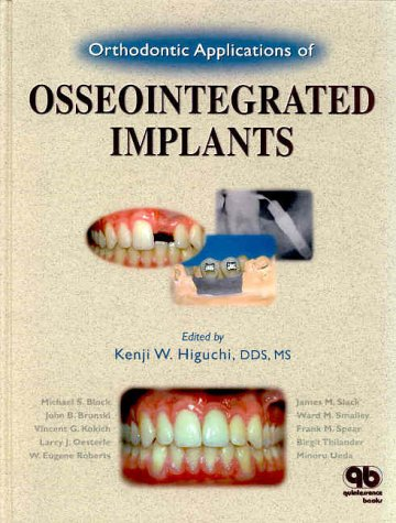 9780867153569: Orthodontic Applications of Osseointegrated Implants