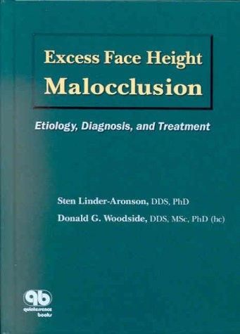 Excess Face Height Malocclusion: Etiology, Diagnosis, and: Linder-Aronson, Sten, Woodside,