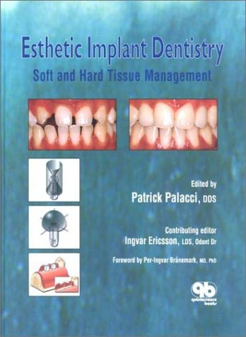 9780867153927: Esthetic Implant Dentistry: Soft and Hard Tissue Management