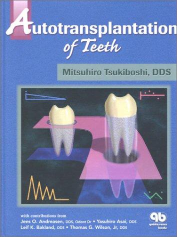 9780867153958: Autotransplantation of Teeth