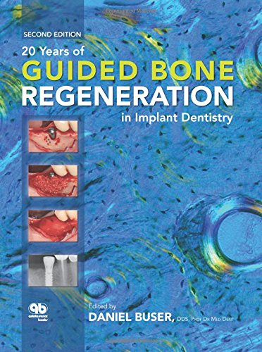 9780867154016: 20 Years of Guided Bone Regeneration in Implant Dentistry