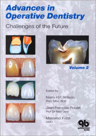 9780867154030: Advances in Operative Dentistry, Volume 2: Challenges of the Future