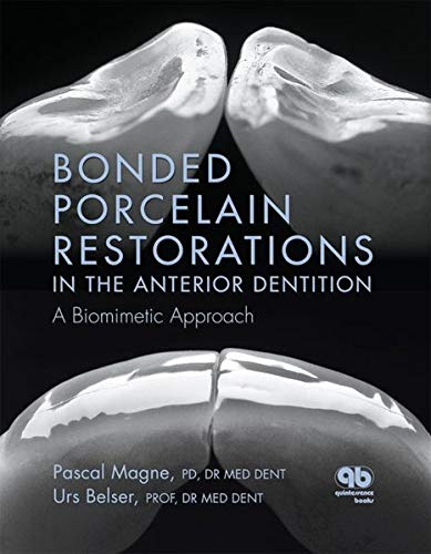9780867154221: Bonded Porcelain Restorations in the Anterior Dentition: A Biomimetic Approach