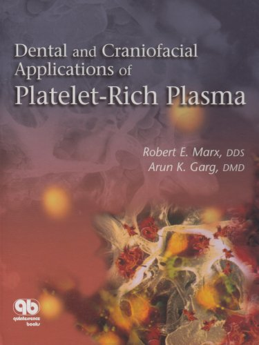 Dental and Craniofacial Applications of Platelet- Rich Plasma