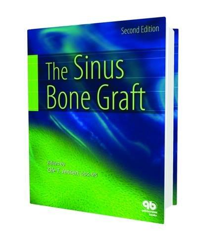 9780867154559: The Sinus Bone Graft