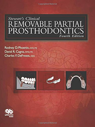 9780867154856: Stewart's Clinical Removable Partial Prosthodontics (Phoenix, Stewart's Clinical Removable Partial Prosthodontics)