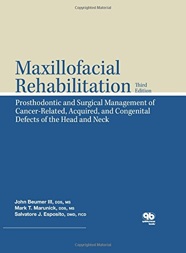 9780867154986: Maxillofacial Rehabilitation: Prosthodontic and Surgical Management of Cancer-Related, Acquired, and Congenital Defects of the Head and Neck