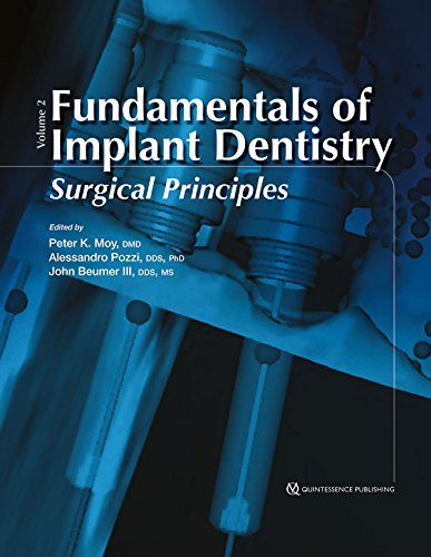 Fundamentals of Implant Dentistry: Surgical Principles: Volume: Peter K. Moy