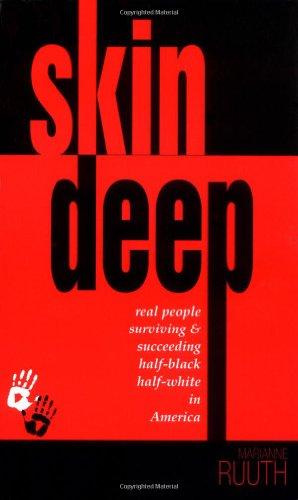 Skin Deep: Real People Surviving & Succeeding Half-Black Half-White in America: Marianne Ruuth