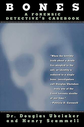 9780871319043: Bones: A Forensic Detective's Casebook