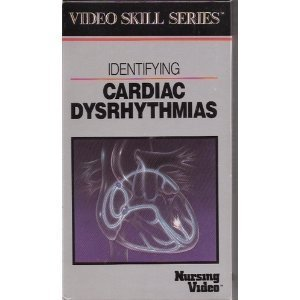 Identifying Cardiac Dysrhythmias (Video Skills Series) (0874342384) by Springhouse Corporation