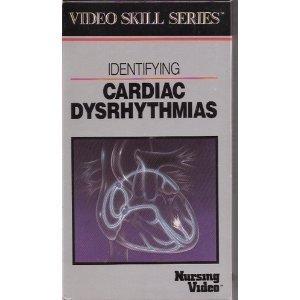 Identifying Cardiac Dysrhythmias (Video Skills Series) (9780874342383) by Springhouse Corporation