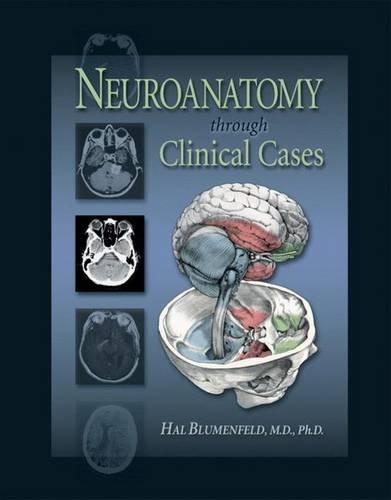 9780878930609: Neuroanatomy Through Clinical Cases (Blumenfeld,Neuroanatomy through Clinical Cases)