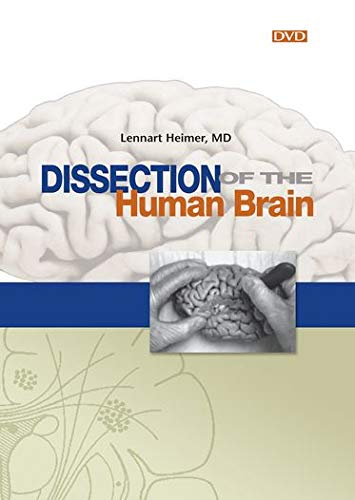 9780878933273: Dissection of the Human Brain