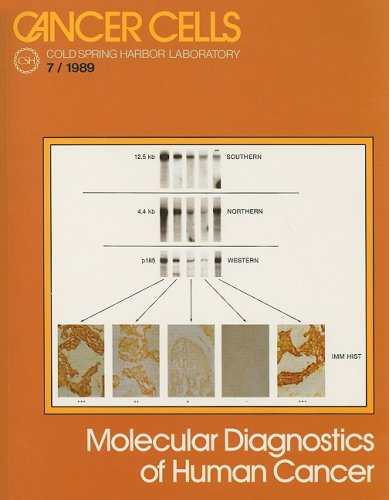 Molecular Diagnostics of Human Cancer (Cancer Cells): Mark Furth
