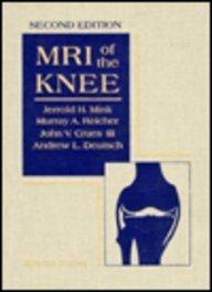 9780881679366: MRI of the Knee