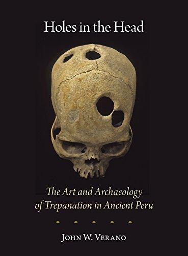 9780884024125: Holes in the Head: The Art and Archaeology of Trepanation in Ancient Peru (Dumbarton Oaks Pre-Columbian Art and Archaeology Studies Series)