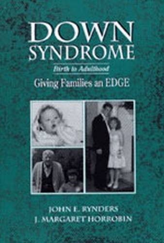 9780891082361: Down Syndrome: Birth to Adulthood, Giving Families an Edge