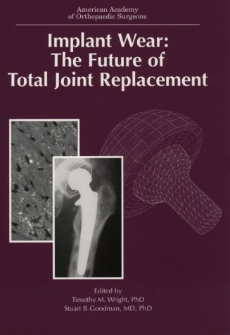 9780892031481: Implant Wear: The Future of Total Joint Replacement (Seminar)