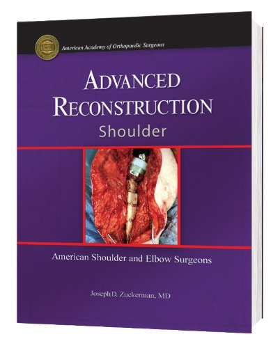 Advanced Reconstruction Shoulder (American Academy of Orthopaedic: Joseph D.; M.D.