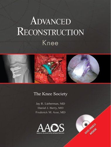 9780892034529: Advanced Reconstruction: Knee