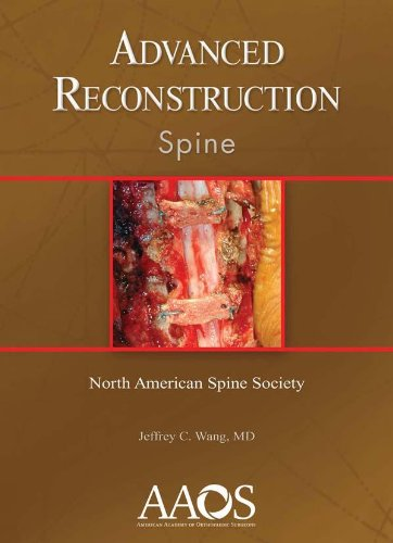 9780892035816: Advanced Reconstruction: Spine