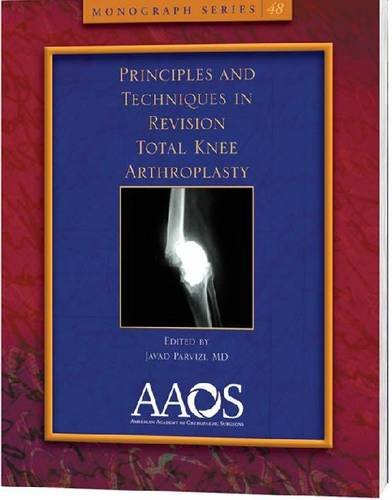 9780892038428: Principles and Techniques in Revision Total Knee Arthroplasty (Monograph) (Monograph Series (American Academy of Orthopaedic Surgeons))