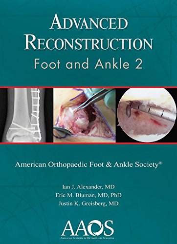 9780892038442: Advance Reconstruction: Foot and Ankle 2 (Advanced Reconstruction)