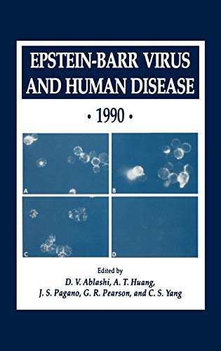 9780896032217: Epstein-Barr Virus and Human Disease · 1990 (Experimental Biology and Medicine)