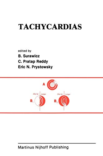 9780898385885: Tachycardias (Developments in Cardiovascular Medicine)