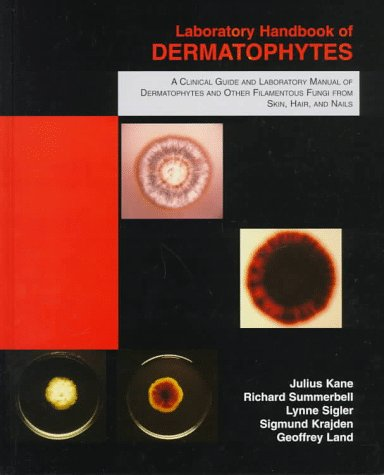 9780898631579: Laboratory Handbook of Dermatophytes: A Clinical Guide and Laboratory Handbook of Dermatophytes and Other Filamentous Fungi from Skin, Hair, and Nails