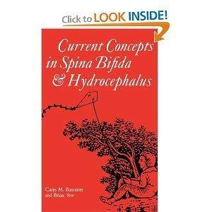 9780901260918: Current Concepts in Spina Bifida and Hydrocephalus (Clinics in Developmental Medicine)