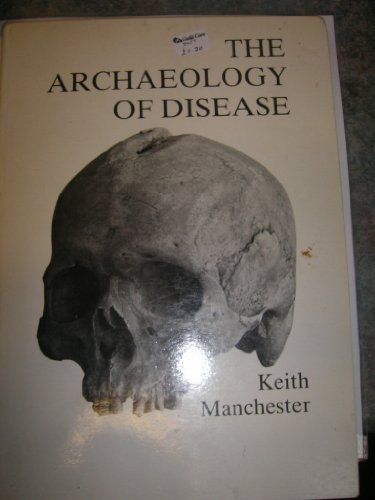 9780901945518: The archaeology of disease