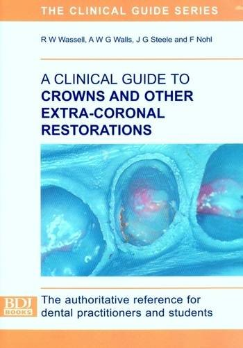 9780904588736: A Clinical Guide to Crowns and Other Extra-coronal Restorations