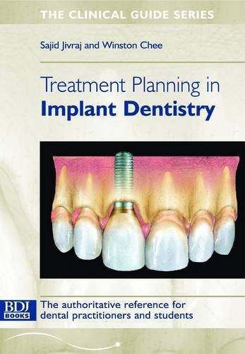 Treatment Planning in Implant Dentistry (Clinical Guide): Jivraj, S.; Chee, Won K.
