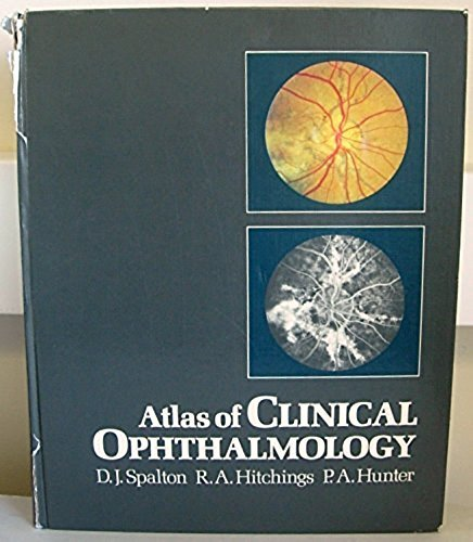 9780906923238: Atlas of clinical ophthalmology