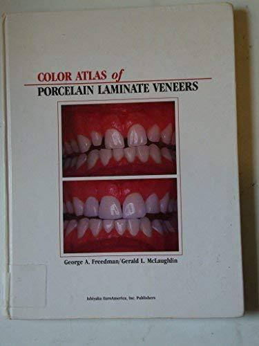 9780912791524: Color Atlas of Porcelain Laminate Veneers
