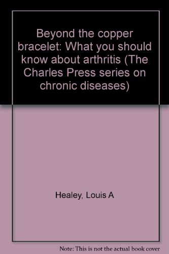 Beyond the copper bracelet: What you should know about arthritis (The Charles Press series on ...