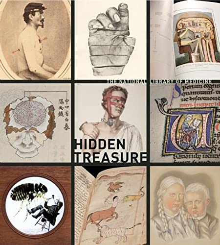 9780922233427: Hidden Treasure: The National Library of Medicine