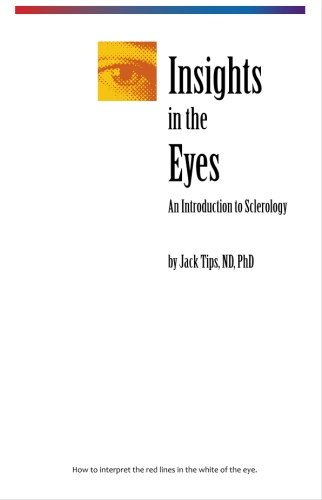 Insight In The Eyes: Tips, Jack